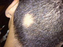 alopecia-areata-hoofd